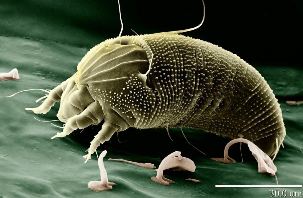 When Dust Mites Attack